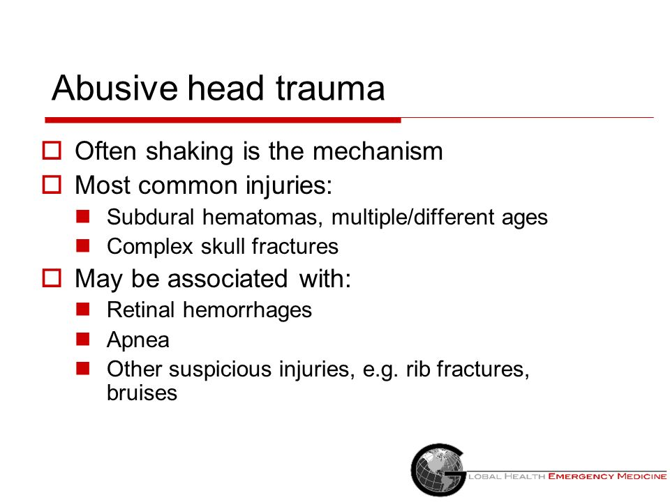 Abusive head trauma Often shaking is the mechanism