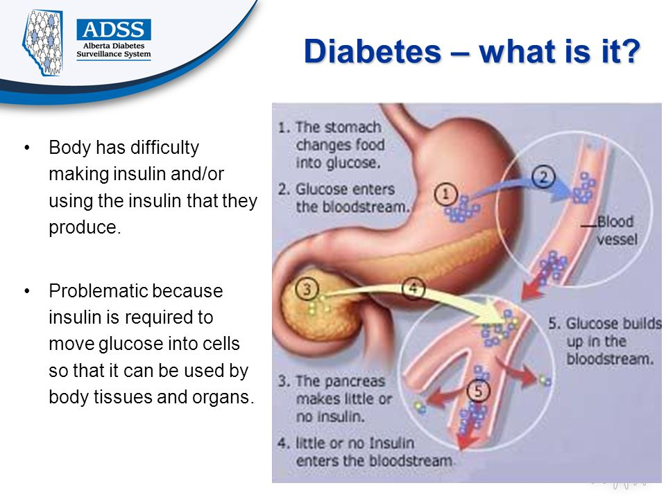 Diabetes – what is it Body has difficulty making insulin and/or using the insulin that they produce.