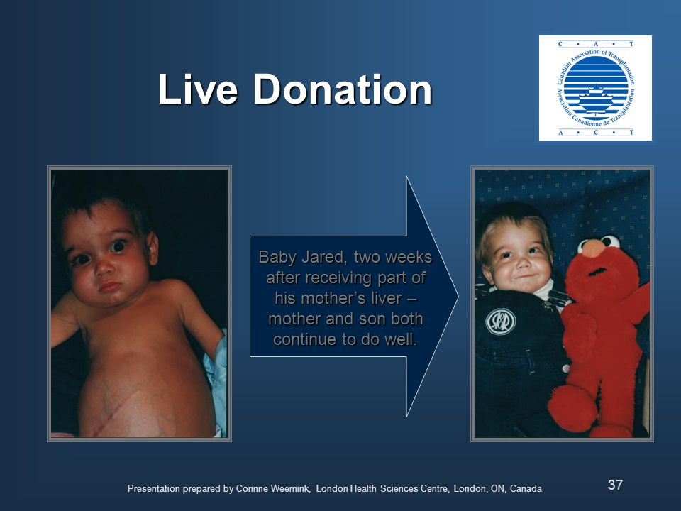 Live Donation Baby Jared, two weeks after receiving part of his mother's liver – mother and son both continue to do well.