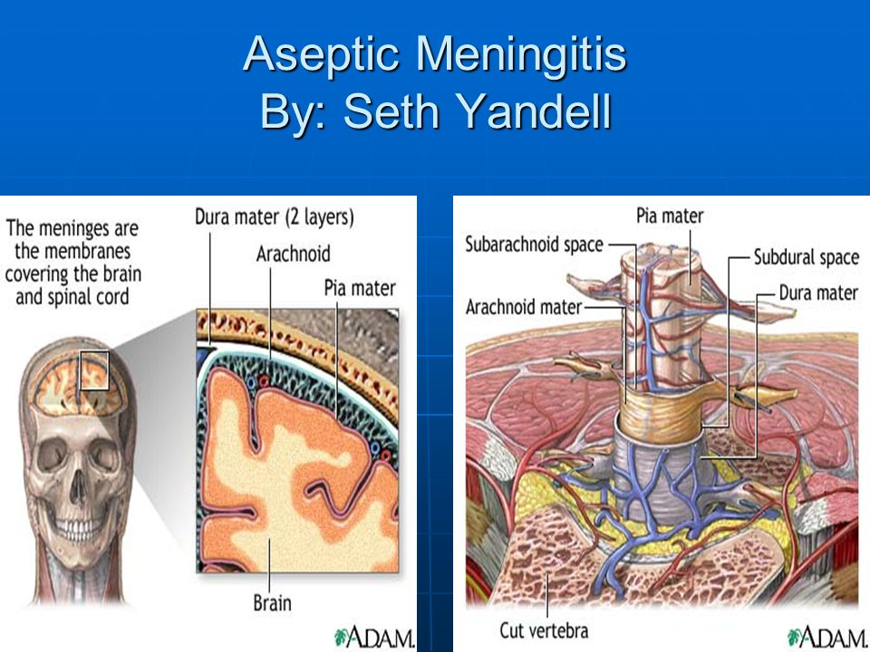 aseptic meningitis by: seth yandell - ppt download, Skeleton