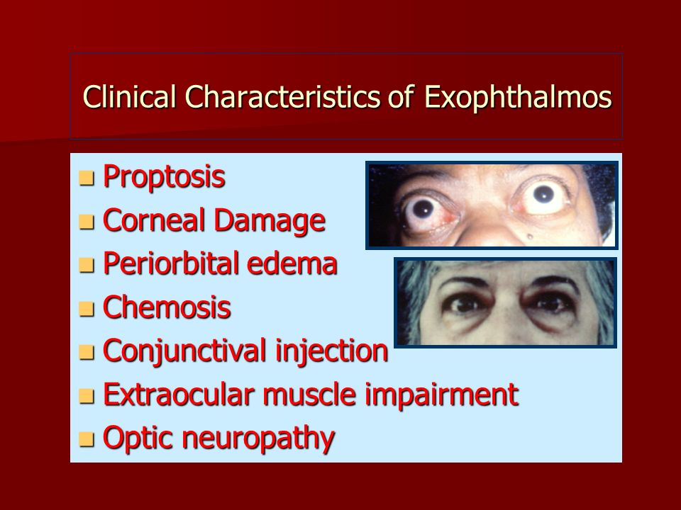 Clinical Characteristics of Exophthalmos