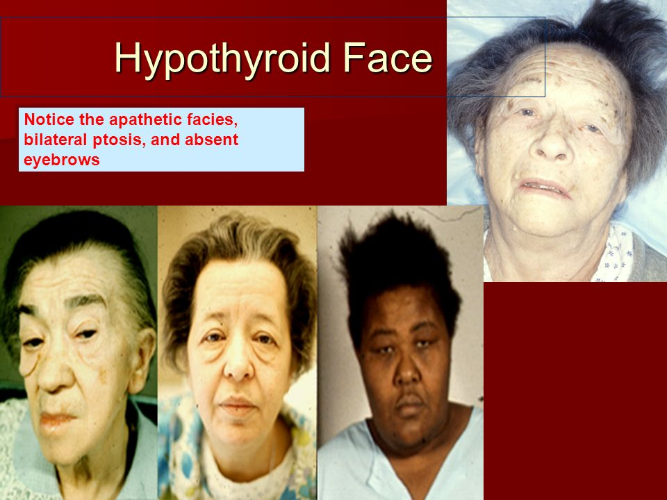 Hypothyroid Face Notice the apathetic facies, bilateral ptosis, and absent eyebrows