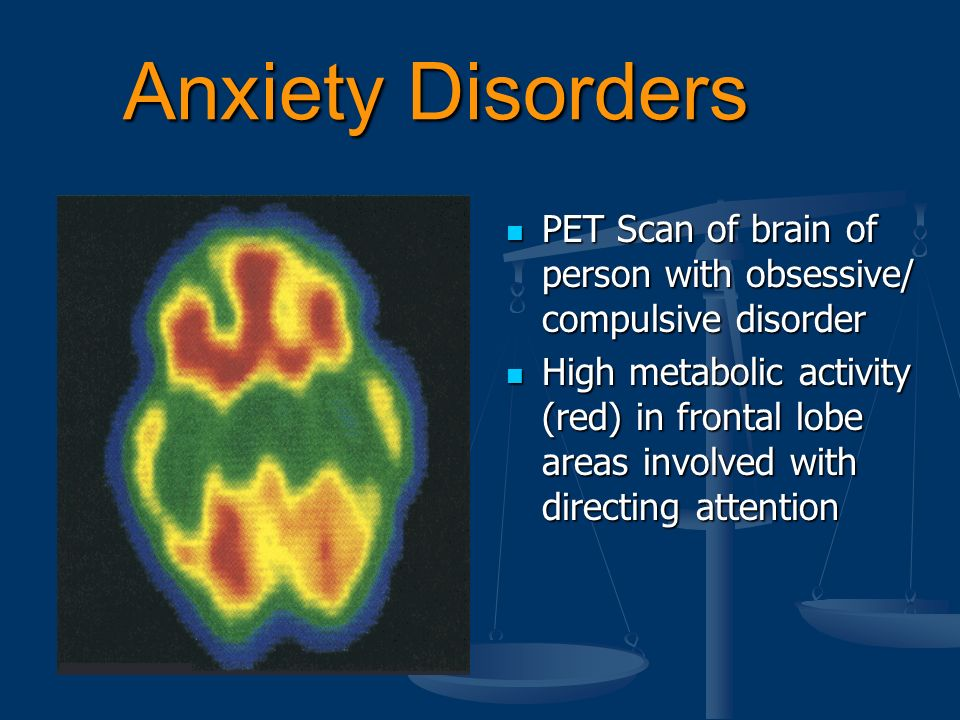 anxiety disorder and the brain essay The brain & behavior research foundation has awarded more than $32 million to anxiety disorders research since 1987.