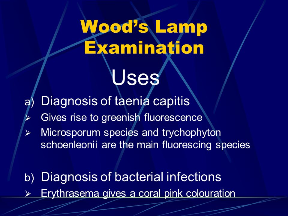 Woods Lamp Examination