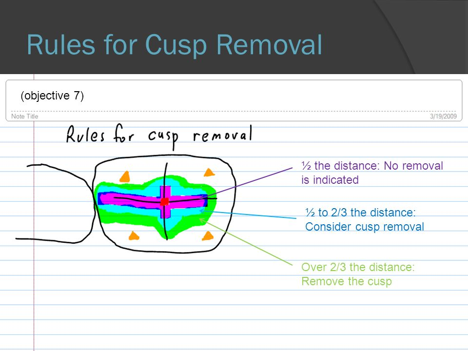 Rules for Cusp Removal (objective 7)