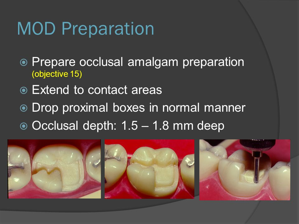 MOD Preparation Prepare occlusal amalgam preparation (objective 15)
