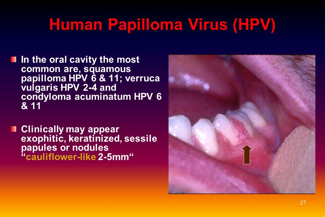 Oral Lesions of HIV in the Era of HAART - ppt video online ...