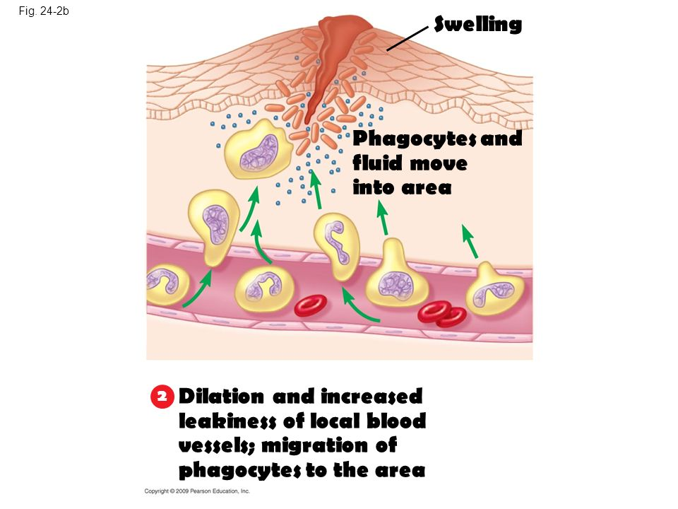 Dilation and increased leakiness of local blood vessels; migration of