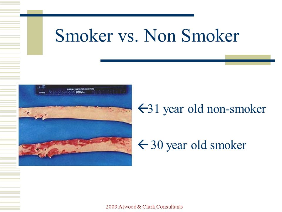 Smokers vs nonsmokers essay help
