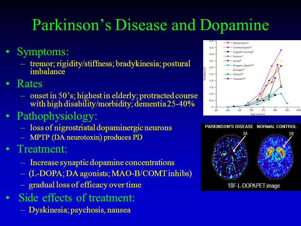 what was the relationship between encephalitis parkinson and dopa
