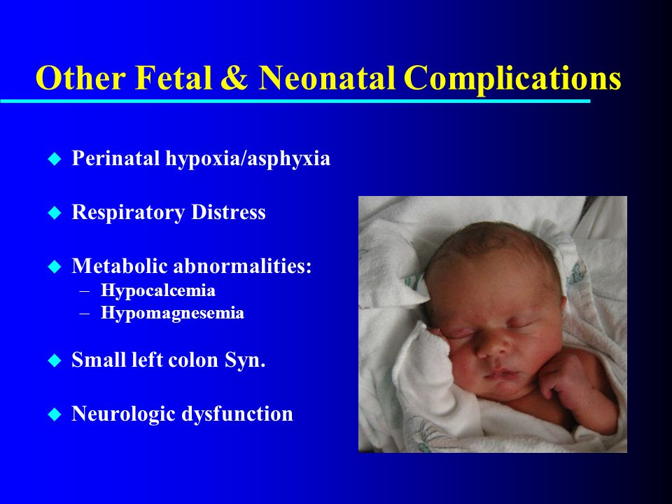 Top 12 Transient Tachypnea Of Newborn Treatment - Gorgeous Tiny
