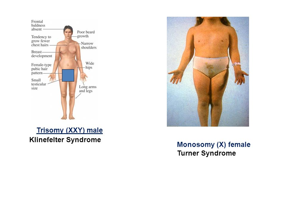 turner and klinefelter syndrome About 47,xxy (klinefelter syndrome) 47,xxy is the most common of the x and y variations the association for x and y chromosome variations (axys.