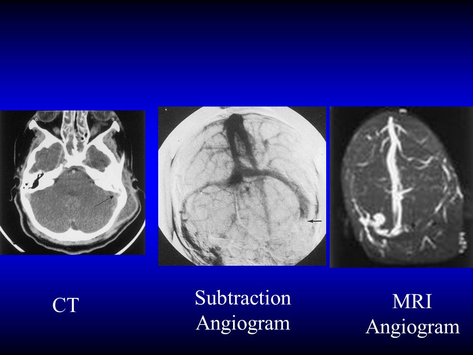 Subtraction Angiogram