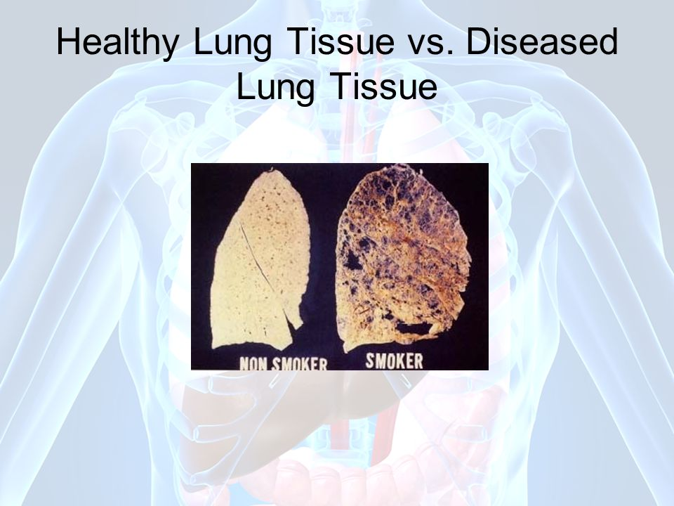 Healthy Lung Tissue vs. Diseased Lung Tissue
