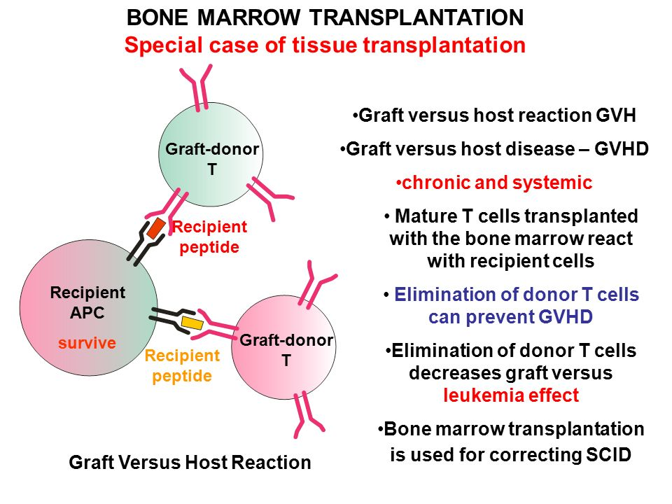 tissue transplant bone marrow essay Choices regarding the regulation of bone marrow transplantation this essay begins with a brief recitation of the biology of bone marrow  bone marrow transplant.