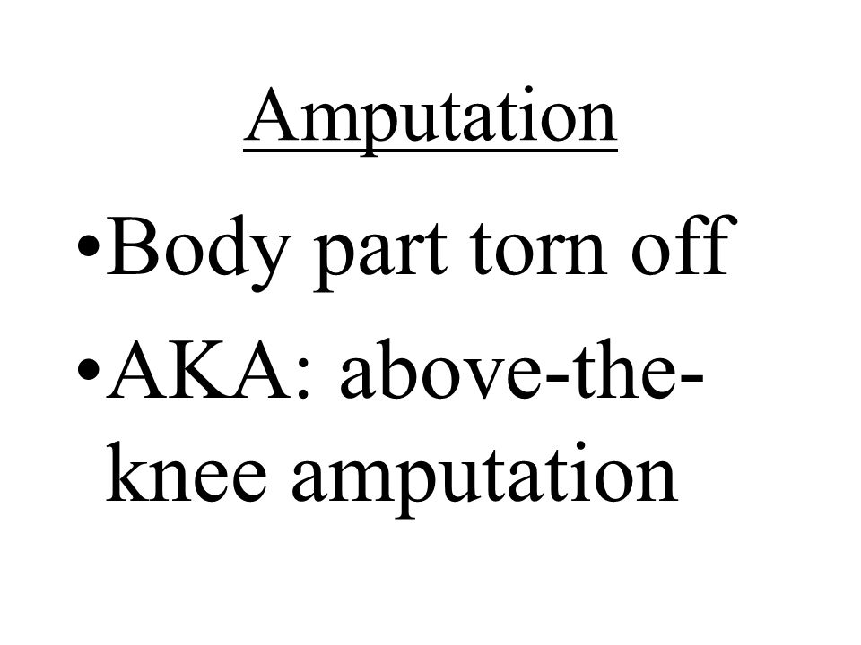 AKA: above-the-knee amputation