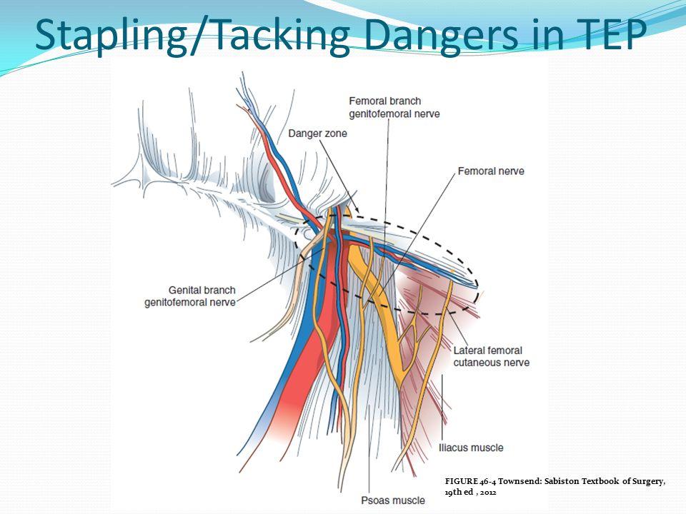 Stapling/Tacking Dangers in TEP