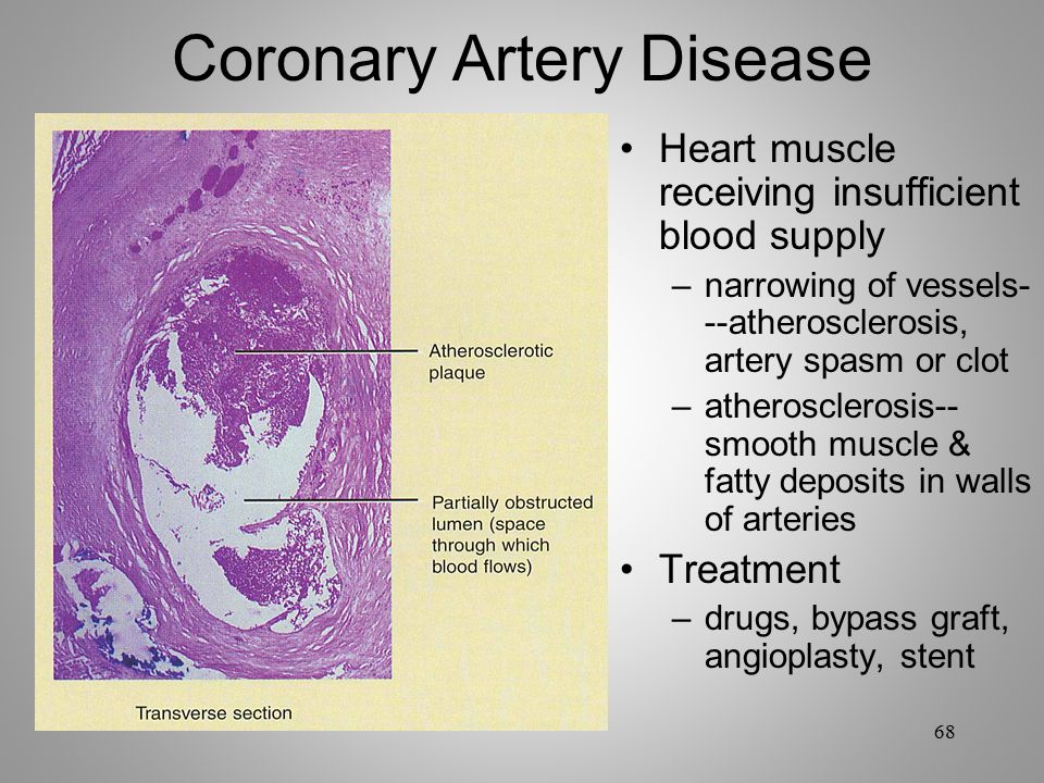 How to Make the Best Diet for Coronary Artery Disease?