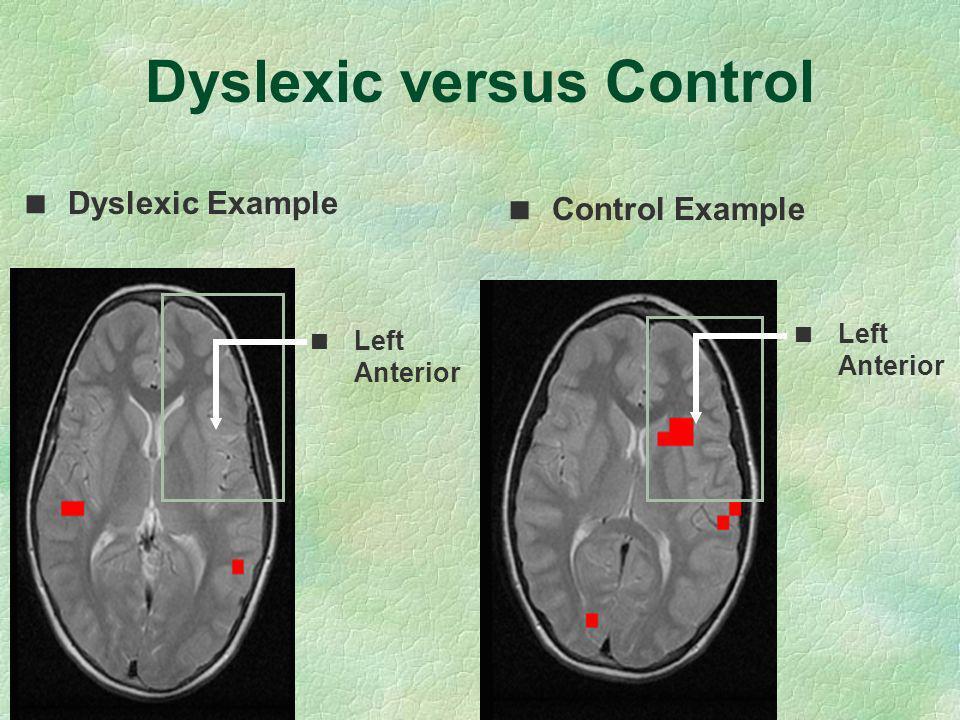 Dyslexic versus Control