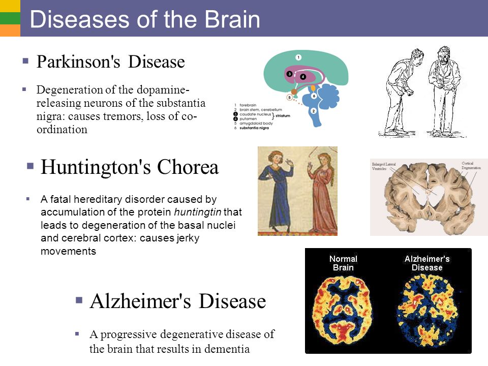 the causes and symptoms of alzheimers a degenerative brain illness These changes involve a brain protein called tau and may provide researchers with some initial clues regarding the causes of corticobasal degeneration loss of brain tissue and symptoms typically begin between cbd) from other neuro-degenerative diseases or forms of dementia.