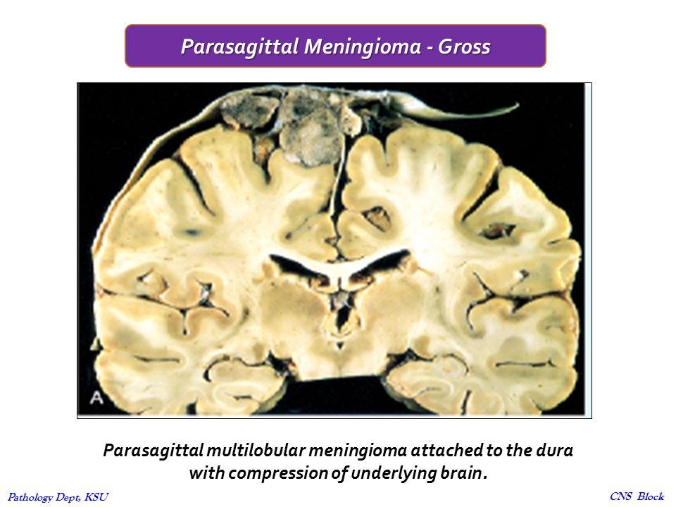 Central Nervous System - ppt video online download