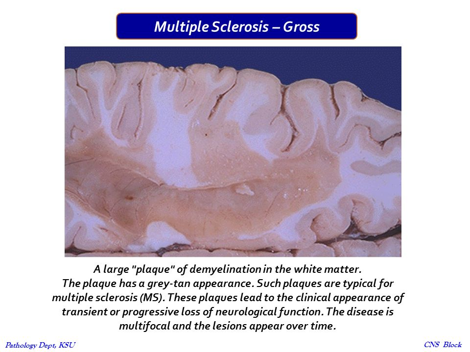 the pathology of multiple sclerosis Patients with multiple sclerosis (ms) who experience seizures are more likely to be younger at the age of ms onset than patients with ms who do not have seizures, according to a study reported in.
