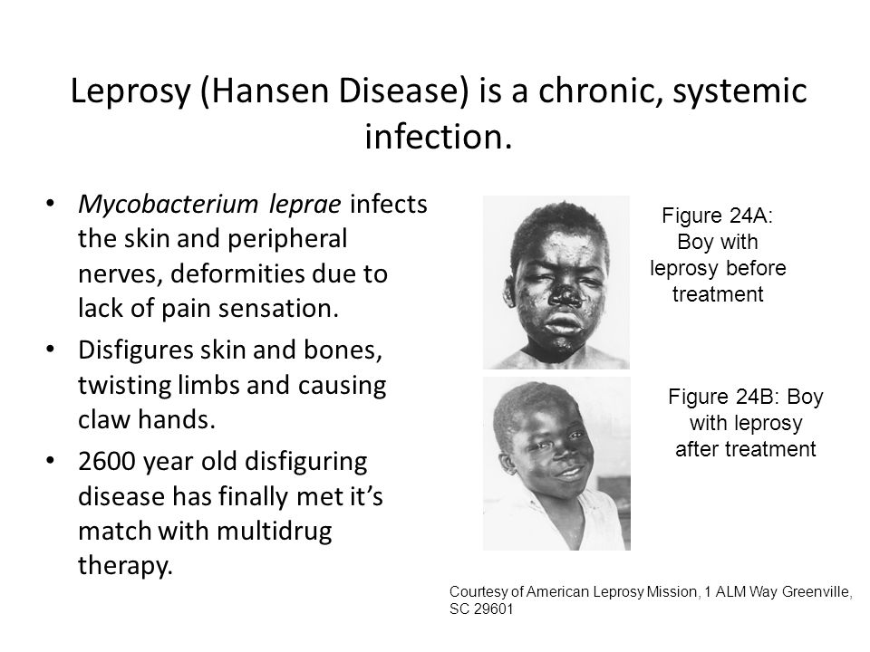 Leprosy (Hansen Disease) is a chronic, systemic infection.