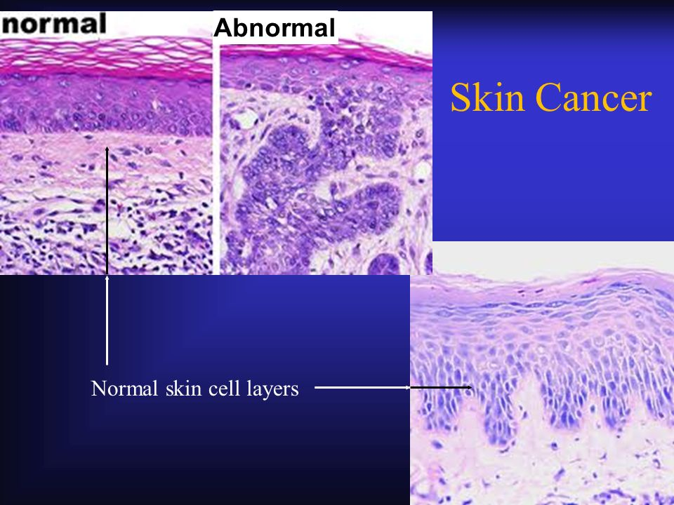 Abnormal Skin Cancer Normal skin cell layers