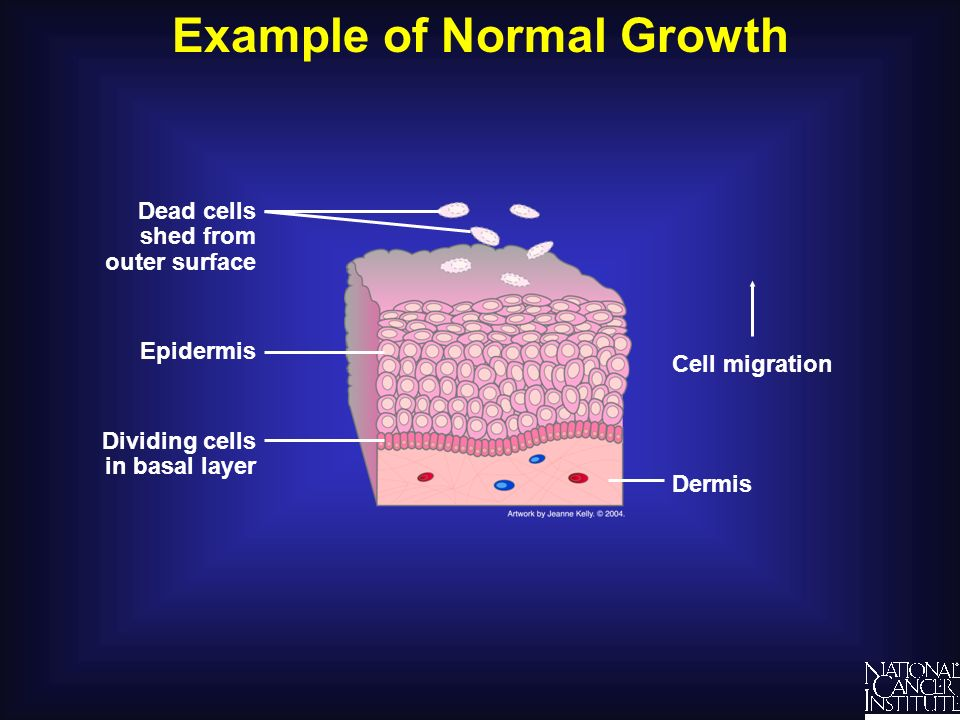 Example of Normal Growth Understanding Cancer and Related Topics