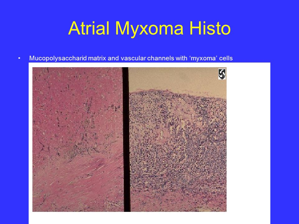 Primary cardiac tumors ppt video online download for Atrial mural thrombus
