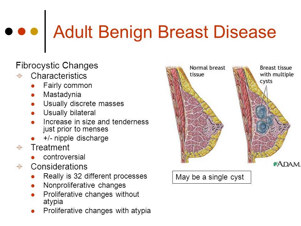 Menopause and fibrotic breast disease