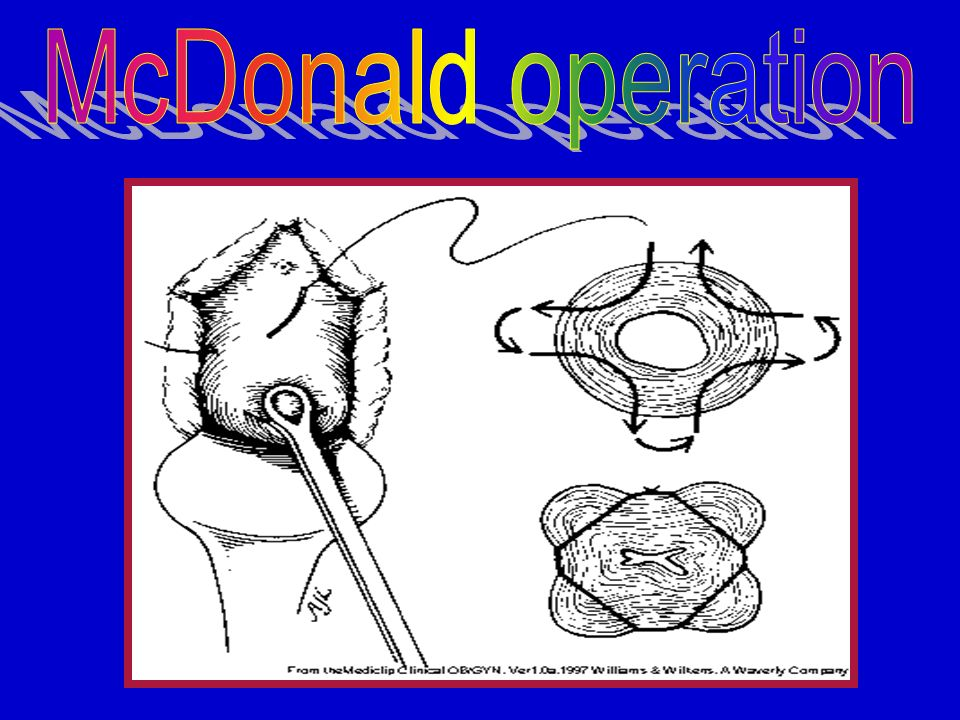 mcdonalds operations manual A ecs mcdonald's employs the plaintiffs and similarly situated  mcdonald's  system business manuals, including its operations and.