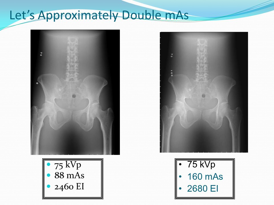 Fundamentals Of Digital Radiology Ppt Video Online Downloadrhslideplayer: 75 Se Radiography Camera At Elf-jo.com