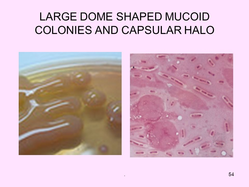 LARGE DOME SHAPED MUCOID COLONIES AND CAPSULAR HALO
