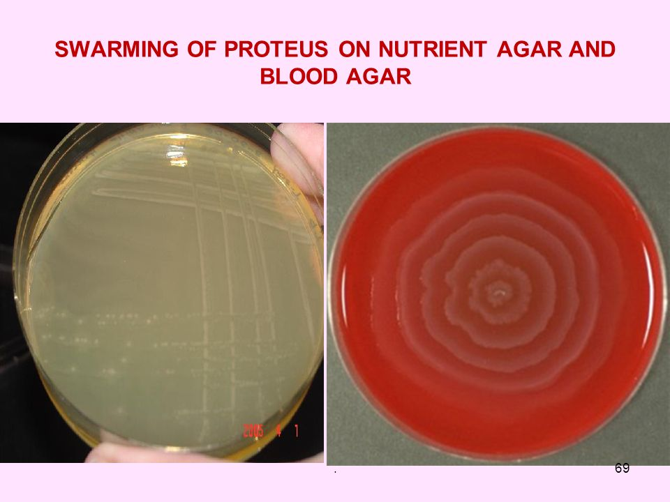 SWARMING OF PROTEUS ON NUTRIENT AGAR AND BLOOD AGAR