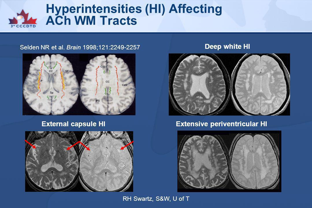 Hyperintensities (HI) Affecting ACh WM Tracts