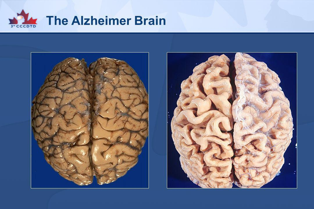 The Alzheimer Brain