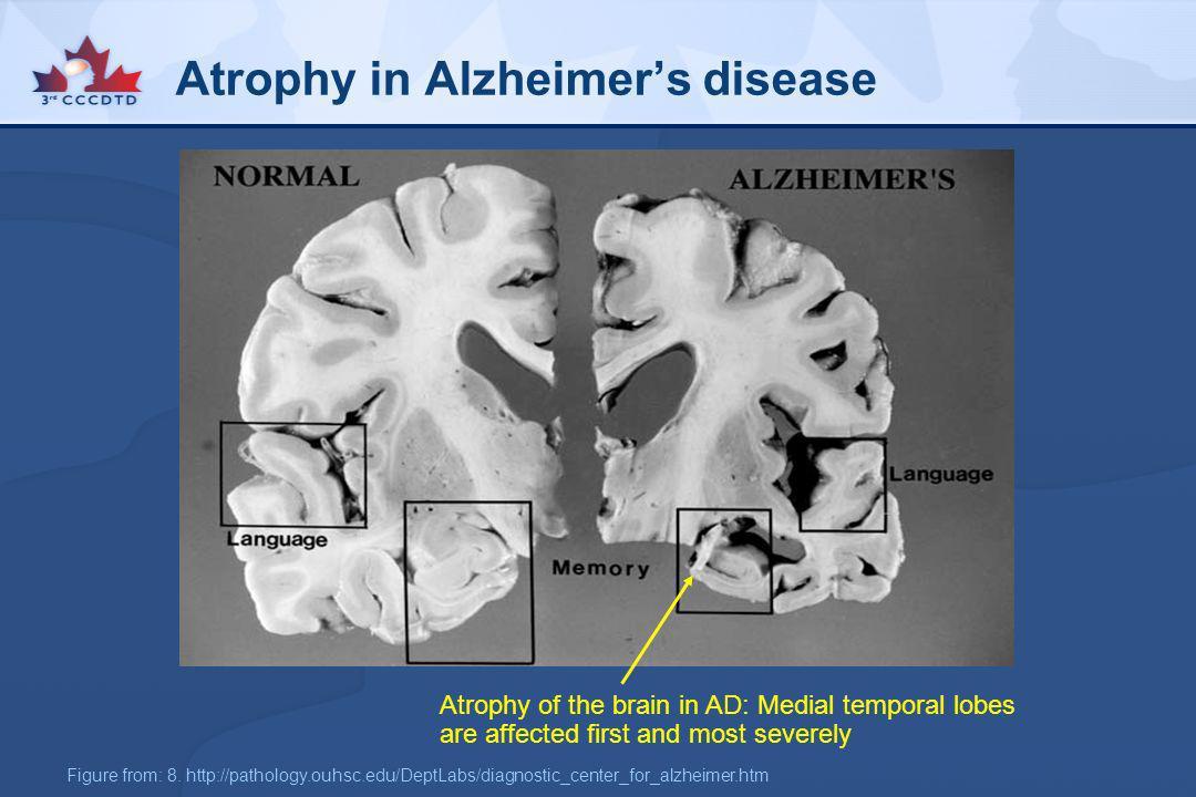 Atrophy in Alzheimer's disease