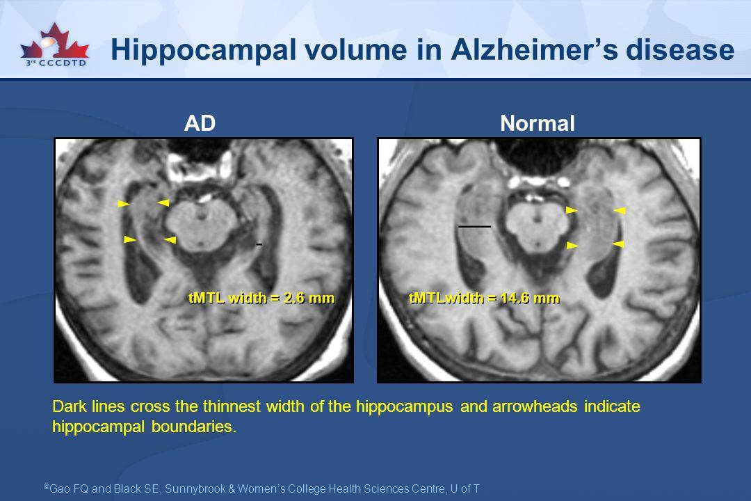 Hippocampal volume in Alzheimer's disease