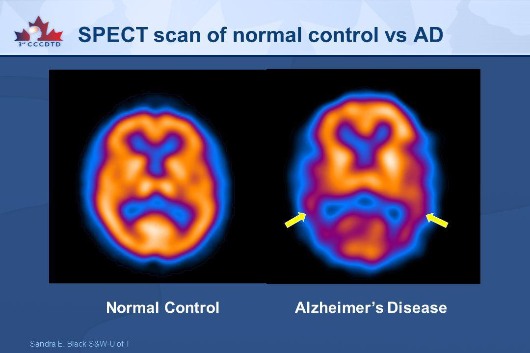 SPECT scan of normal control vs AD