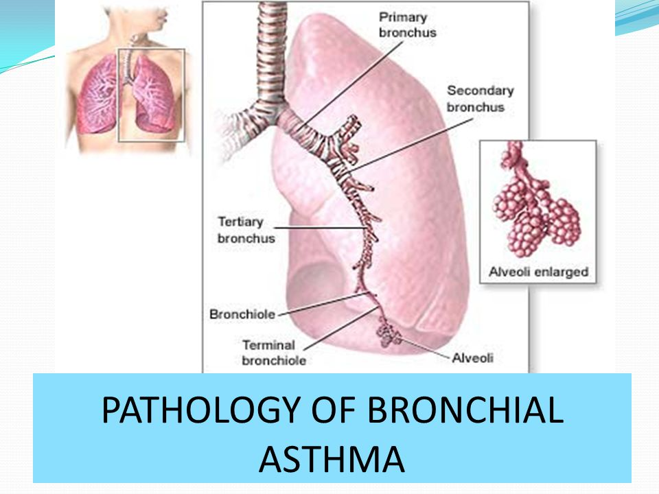 PATHOLOGY OF BRONCHIAL ASTHMA - ppt video online download