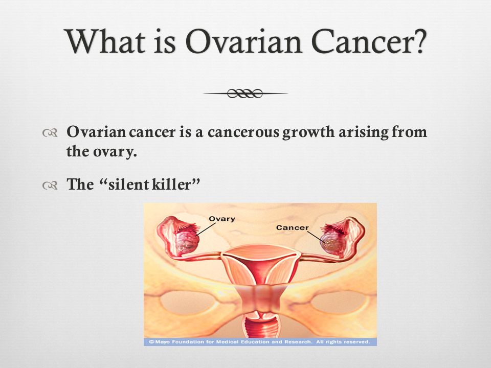 What is Ovarian Cancer. Ovarian cancer is a cancerous growth arising from the ovary.