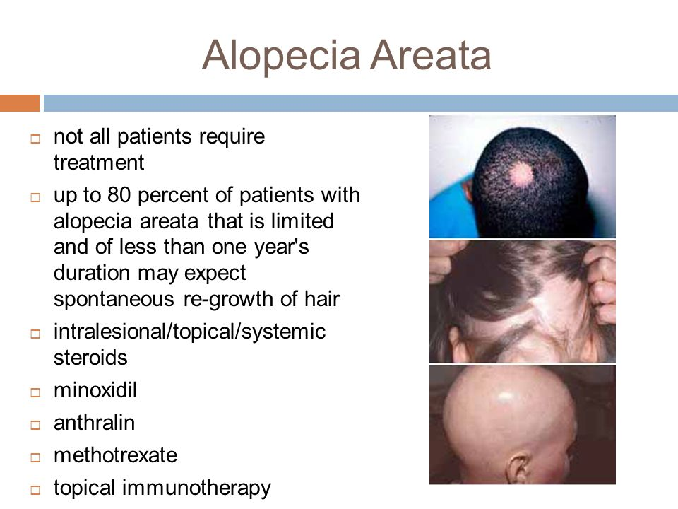 Hairstyles For Alopecia Areata : Childhood alopecia and common pediatric rashes ppt download