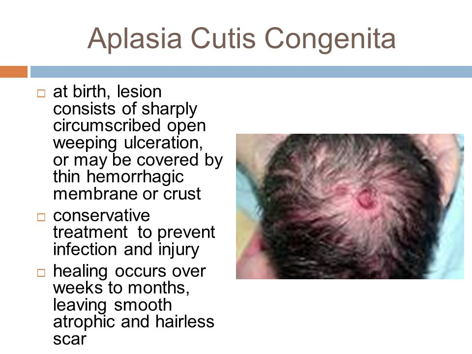 Childhood Alopecia And Common Pediatric Rashes Ppt Video