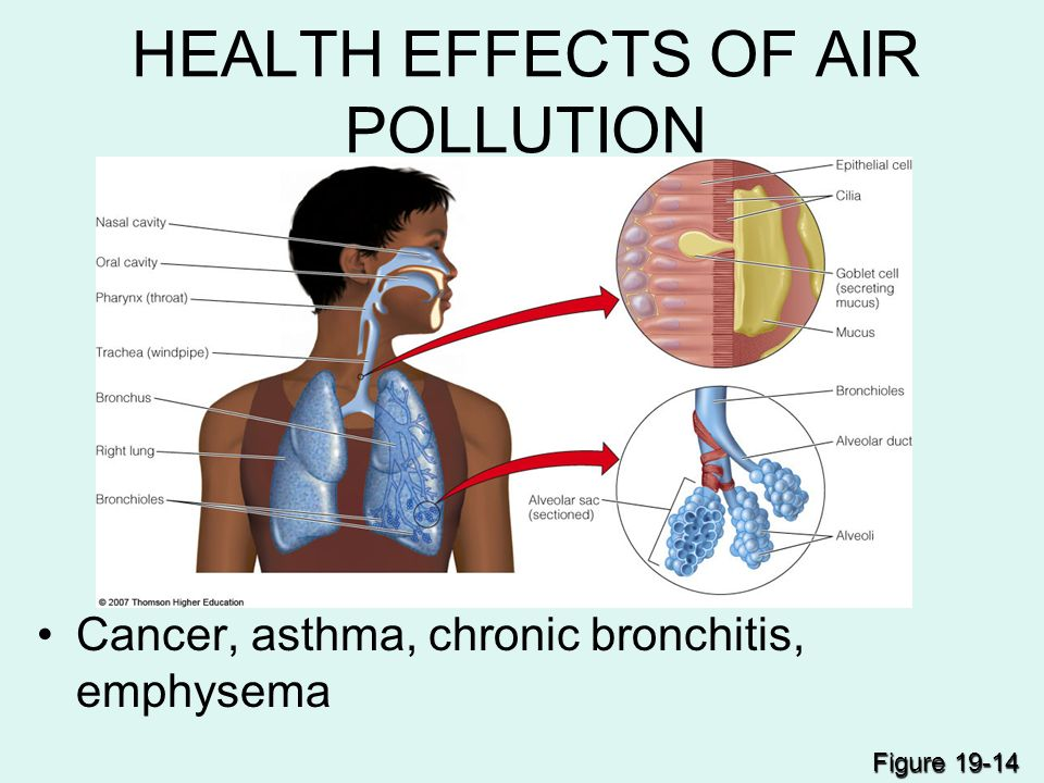 pollution a threat to healthy life Essays pollution a threat to healthy life, creative writing worksheets for kindergarten, creative writing narrative voice.