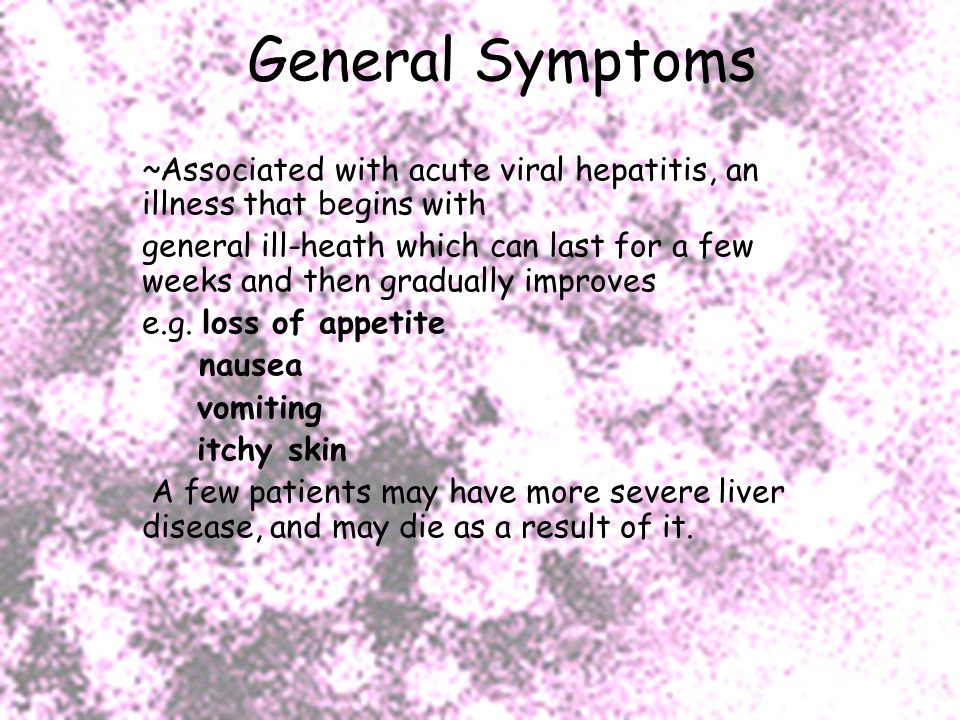 General Symptoms ~Associated with acute viral hepatitis, an illness that begins with.