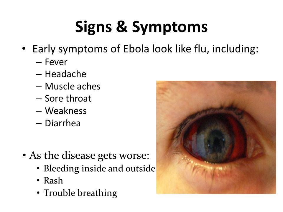 the signs and symptoms of the ebola virus You get ebola from a person who has the virus, and only while he or she has symptoms people pass it to others through their body fluids blood, stool, and vomit are the most infectious, but semen, urine, sweat, tears, and breast milk also carry it.