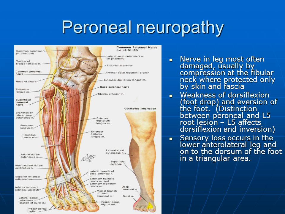 Peripheral Neuropathy Ppt Video Online Download
