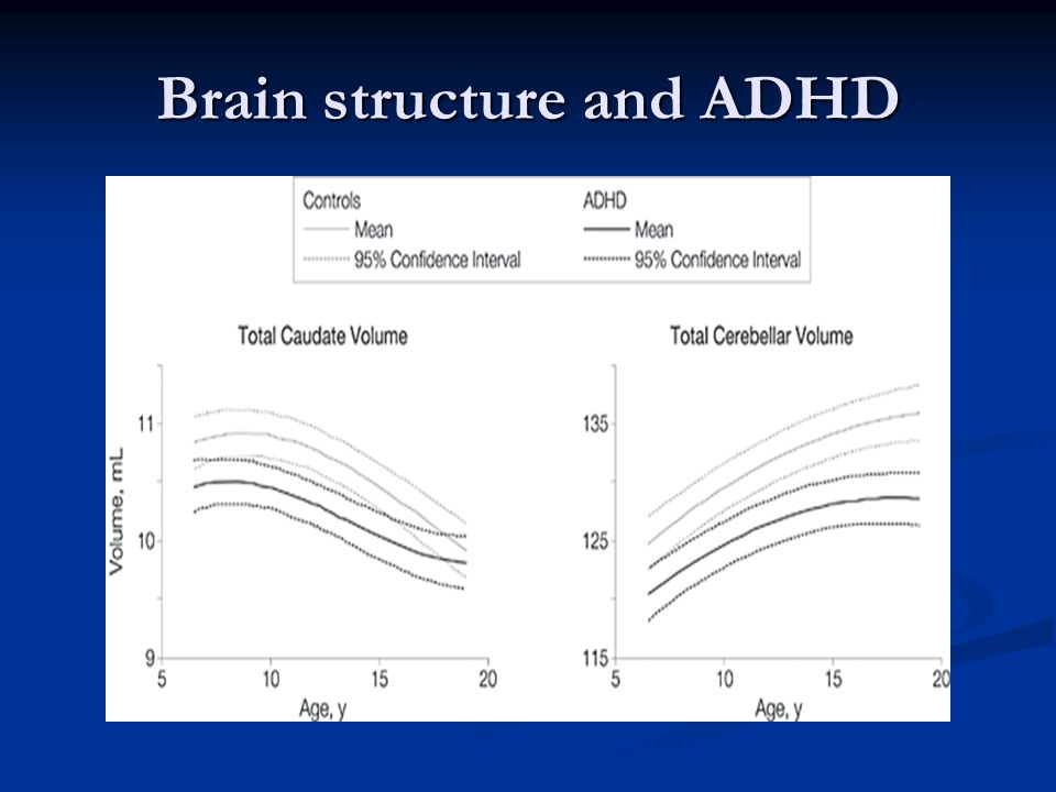 Brain structure and ADHD