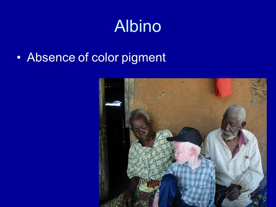 Albino Absence of color pigment